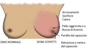 tumore-seno